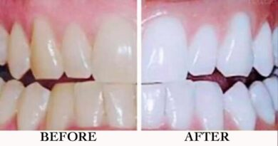 Lose Weight Market sddefault-9-390x205 Mix these 2 natural ingredients and put it in your teeth, the results are incredible