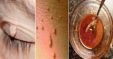 Lose Weight Market sddefault-2-390x205 Easily remove warts with this ingredient