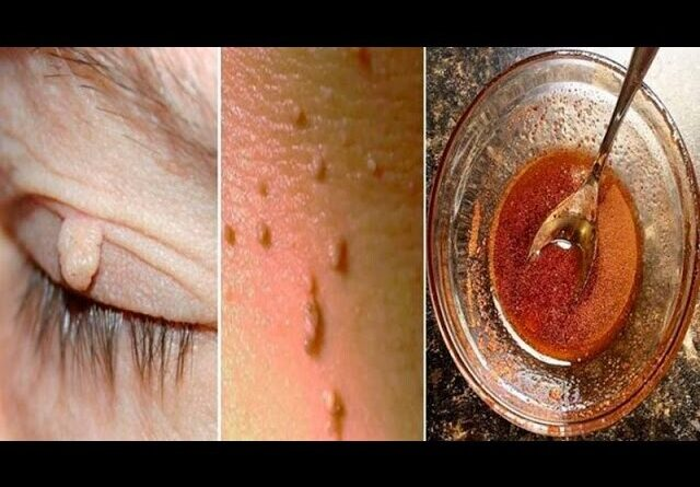 Lose Weight Market sddefault-2-640x445 Easily remove warts with this ingredient
