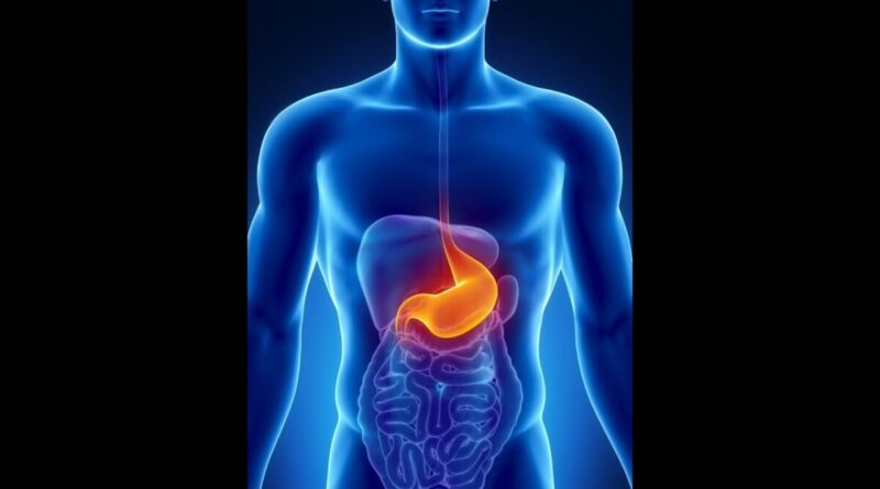 Lose Weight Market maxresdefault-120-800x445 Causes of Colon Cancer